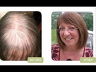 Hair Loss? How To Regrow Hair Naturally. Before and After Photos