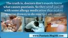 psoriasis treatment cure - treatment of psoriasis - psoriasis on scalp