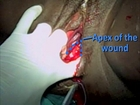 Obstetrics and Gynaecology - Episiotomy & Repair: Suturing of the vaginal mucosa