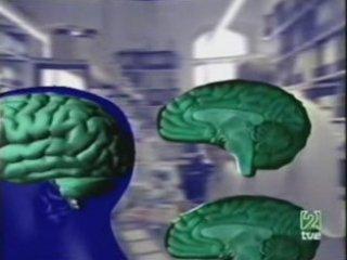 Esquizofrenia: Atrofia cerebral (RM) | PopScreen