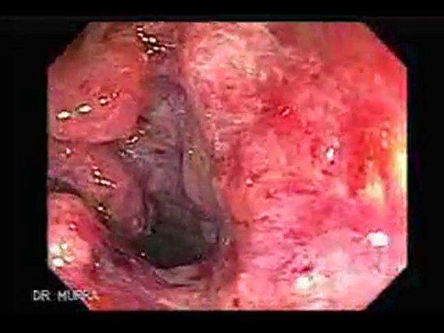 External rectal cancer