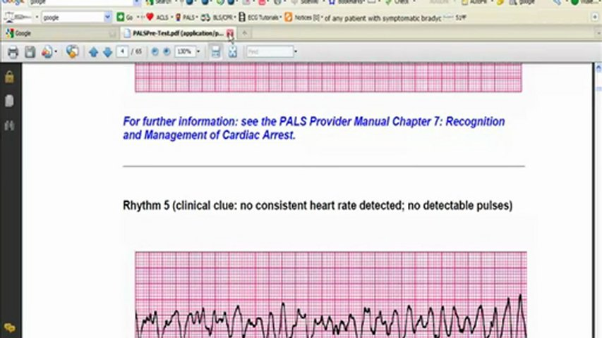 BLS Study Guide - ACLS | BLS | CPR | PALS