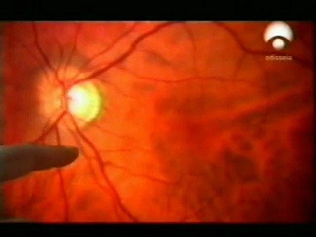 Anatomia de la vision | PopScreen